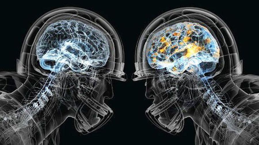 nfl brain injury.jpeg